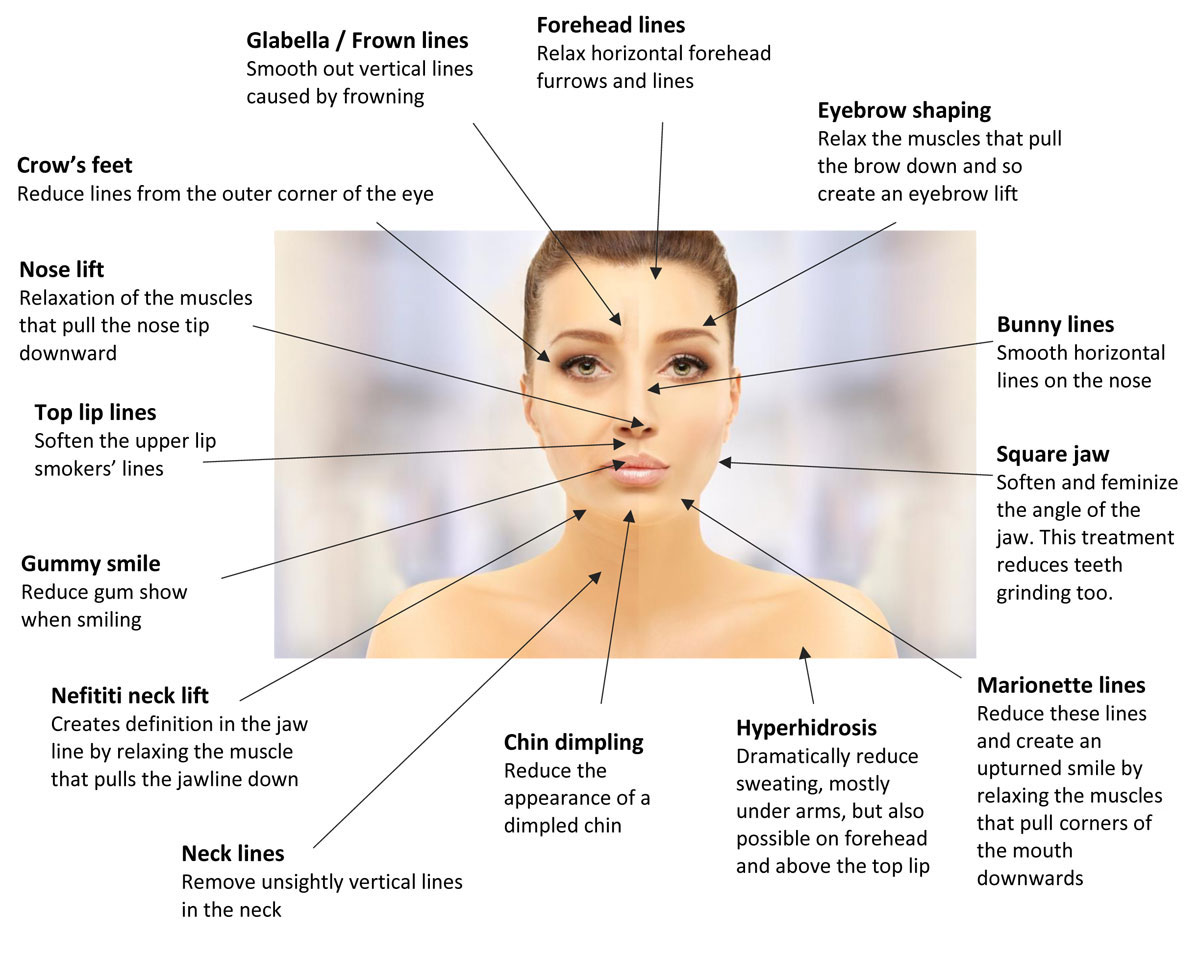 Diagram of areas that Botox can be used to treat