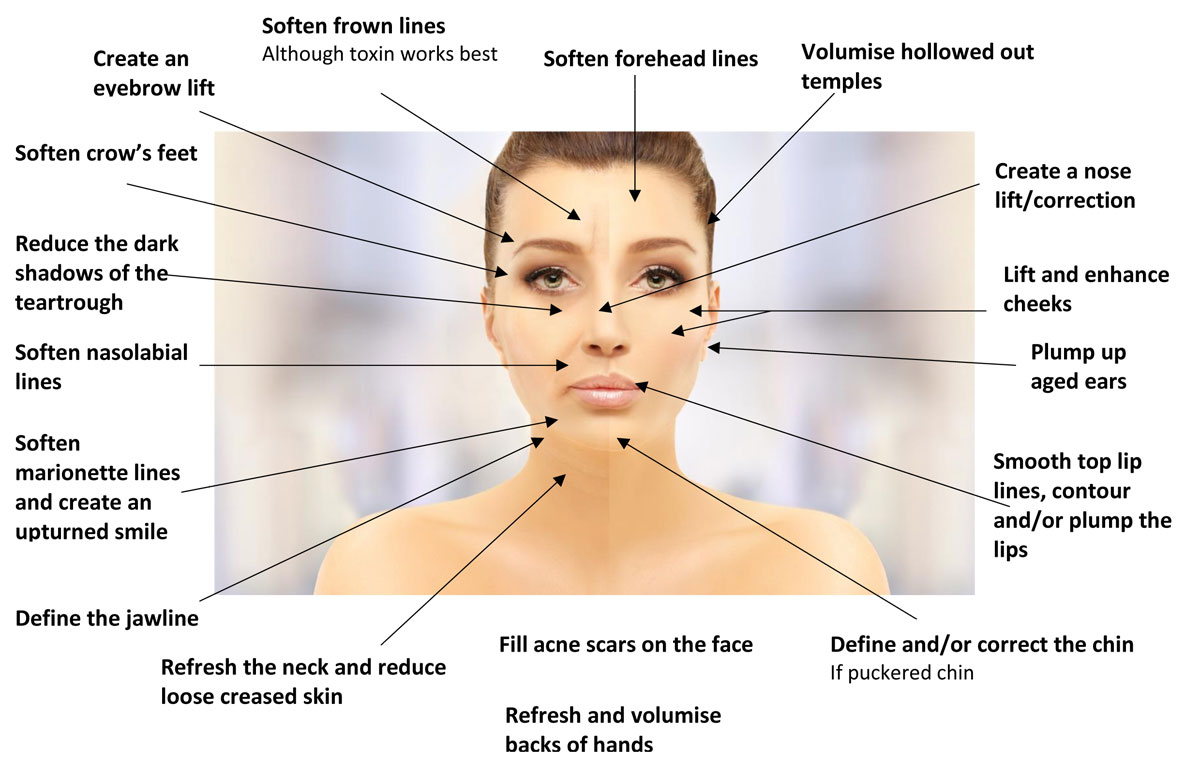 Diagram of areas that Dermal HA Fillers can be used to treat