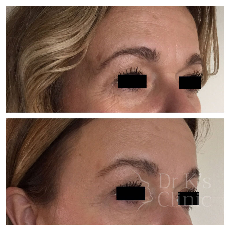 Before and after photo of wrinkle treatment (Botox) in Chester
