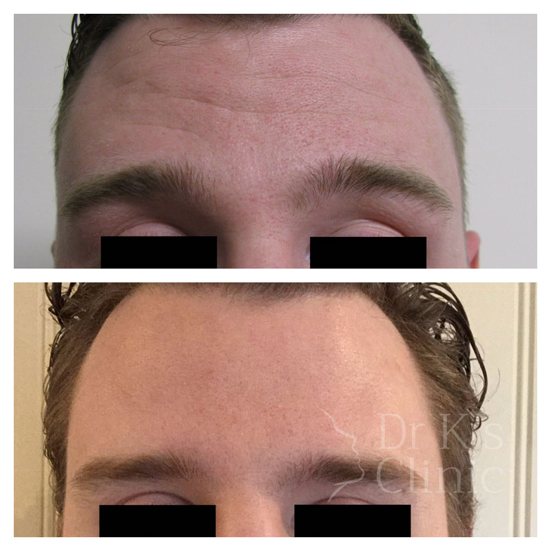 Before and after photo of wrinkle treatment (Botox) in Wrexham