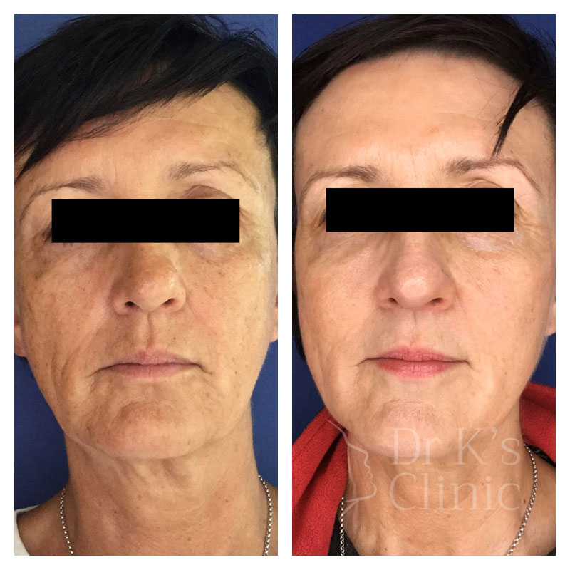 Before and after photo of liquid facelift