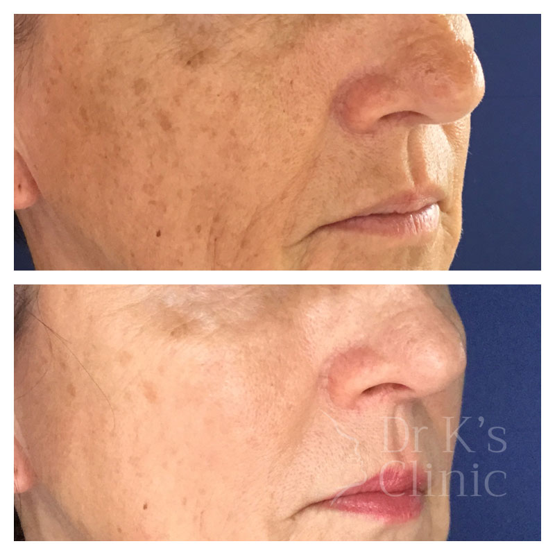 Before and after photo of medical grade peels in Chester
