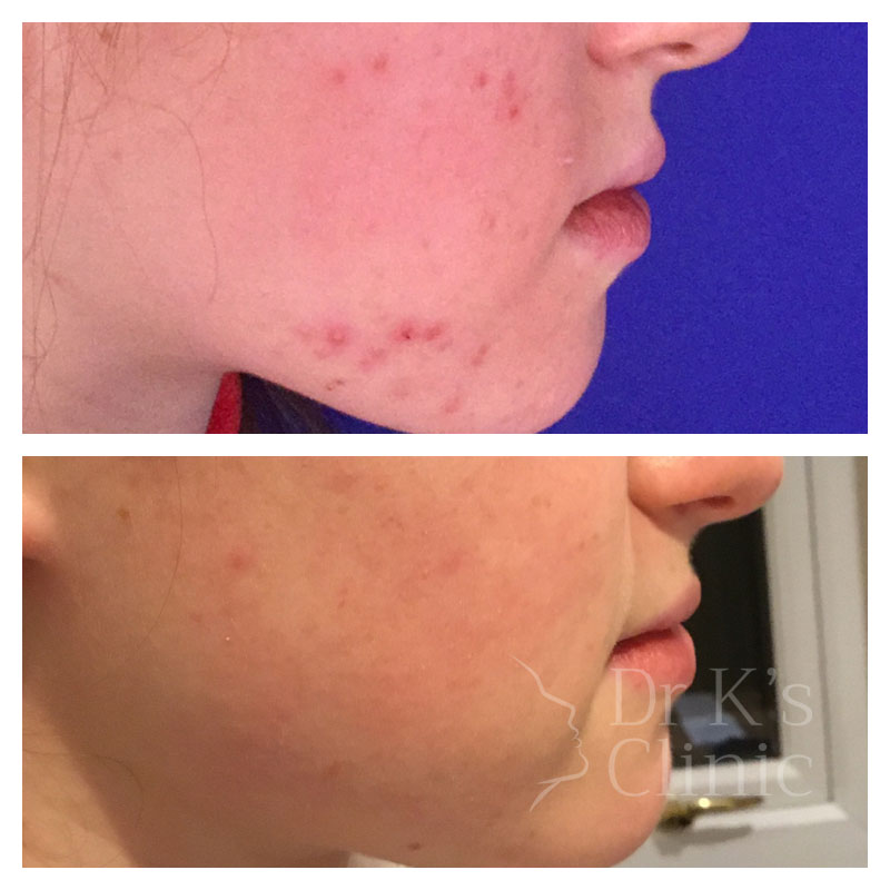Before and after photo of medical grade skin care in Chester