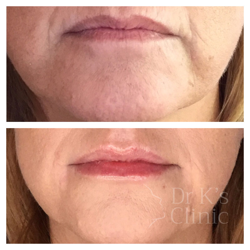 Before and after photo of dermal HA fillers in Chester