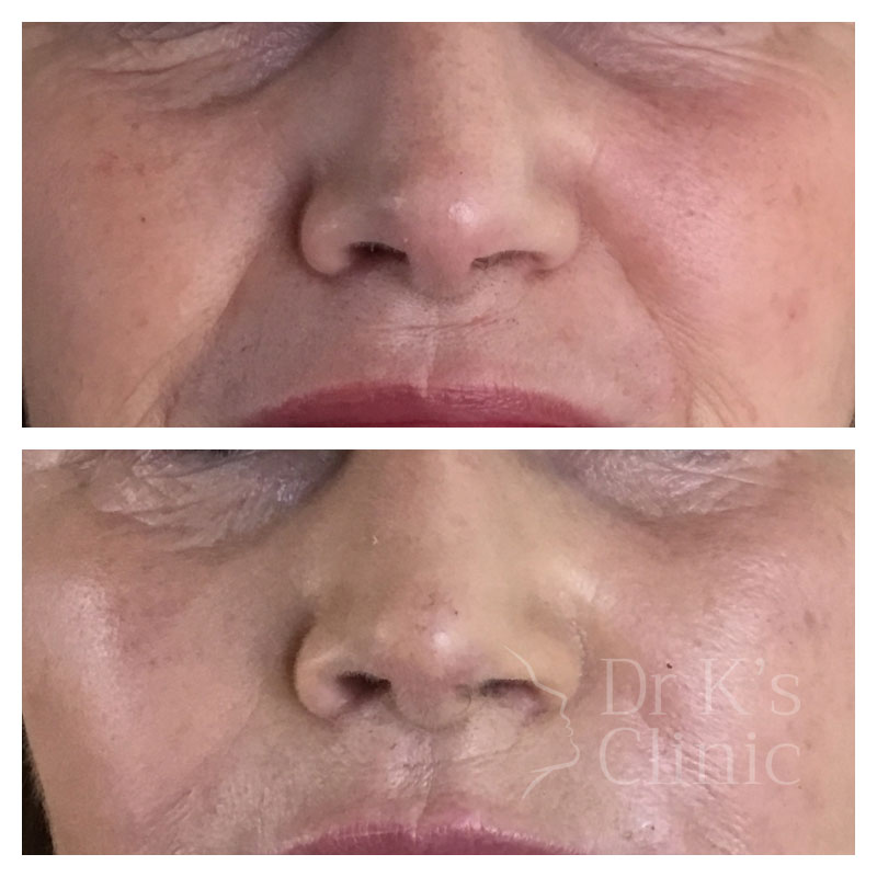 Before and after photo of medical grade peels in Wrexham