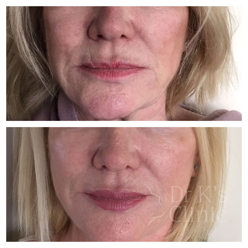 Before and after photo of dermal HA fillers in Wrexham