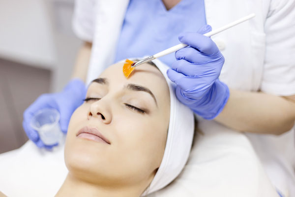 Medical Grade Peel treatment in Chester