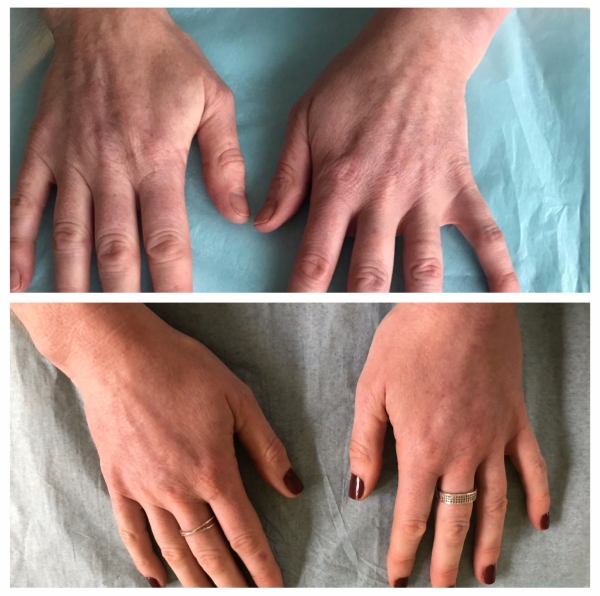 Are you looking for treatment for your aged hands?