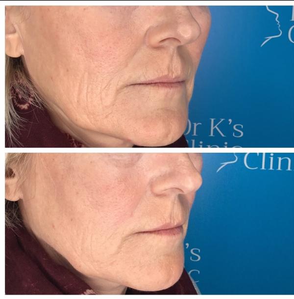 Cheek wrinkle treatment