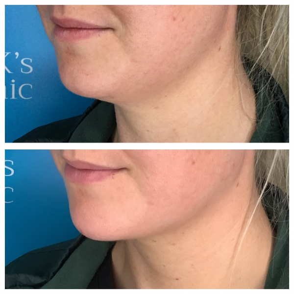 Aqualyx the fat dissolving treatment for double chins