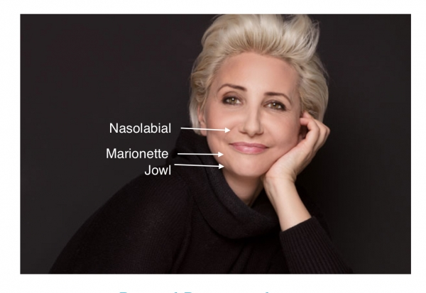Bothered by these lines, folds and jowls? Sometimes called nasolabial lines/folds and marionettes. Botox, dermal fillers, bio-stimulators, PDO thread treatments can help.