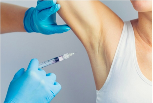 Botox for excess sweating (hyperhidrosis)