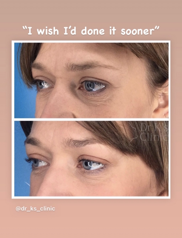 Botox treatment for frown lines