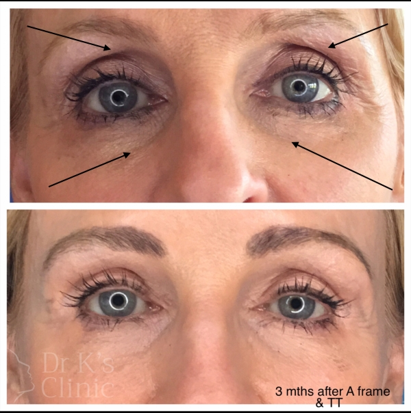 Treatment for hollow or sunken eyes.