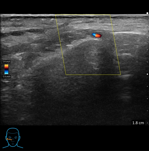 Ultrasound use prior to injecting fillers in aesthetics